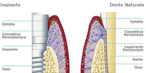 Rappresentazione schematica della similitudine tra i tessuti peridentali e quelli perimplantari