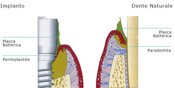 Rappresentazione schematica del diverso comportamento dei tessuti molli perimplantari e parodontali alla placca batterica.