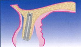 Cresta di volume idonee al posizionamento implantare