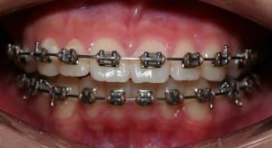 ortodonzia-fissa-classica