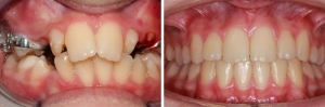 ortodonzia_2w