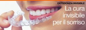 ortodonzia_invisibile_invisalign_590x210