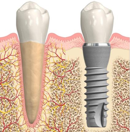 Meglio curare il dente naturale oppure sostituirlo con un impianto?
