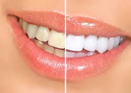 I denti diventano più bianchi solo dal dentista?