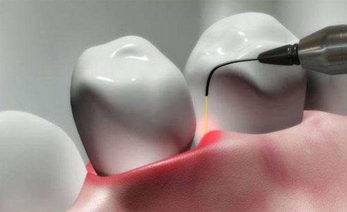 """""""La malattia parodontale"""" diagnosi e cura di gengivite e parodontite con l'ausilio del laser."""